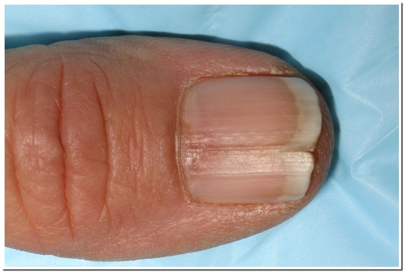 Nails Splitting Vertical Ridges